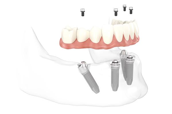 Fester Zahnersatz auf 4 Zahn-Implantaten am grafischen Modell des Unterkiefers